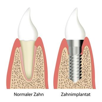 Implantate Köln