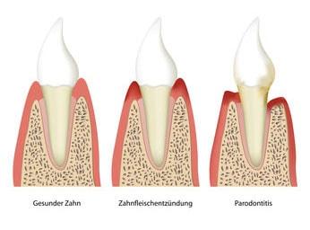 Parodontologie Köln