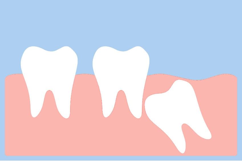 oralchirurgie köln