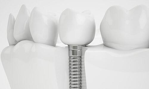 Zahnarzt Implantate Köln