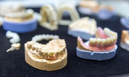 Zahnimplantate Erfahrungen